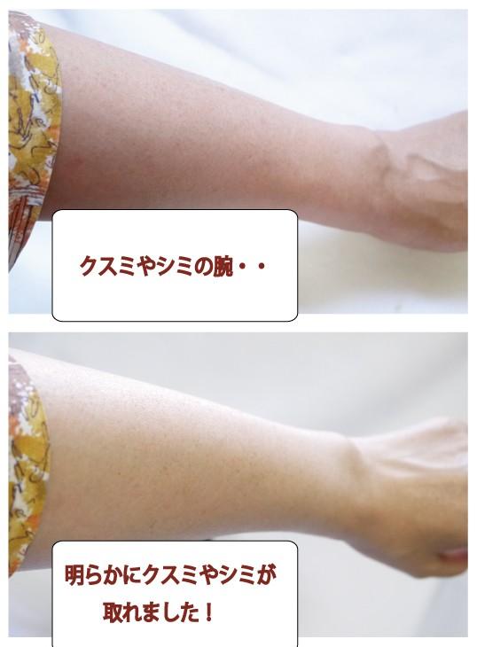 腕ビフォーアフター-1